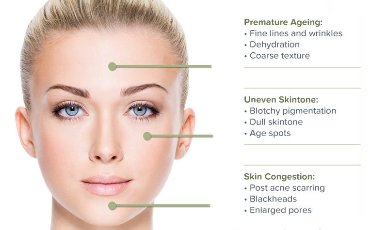 The Benefits of Micro-dermabrasion