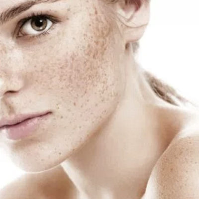 Woman With Freckles and Skin Discoloration
