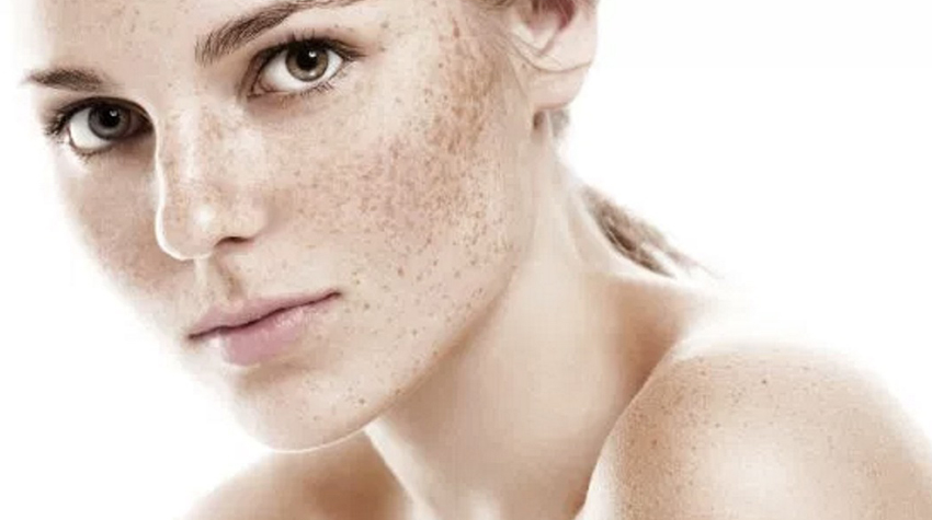 What Causes Skin Discoloration?